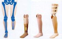 1547727615_bezboleznennye-protezy